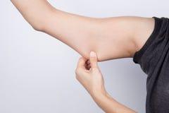 Mujer joven que controla su grasa del brazo Imagen de archivo libre de regalías