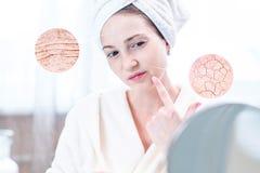 Mujer joven que mira su piel seca con las grietas y con las arrugas Los círculos aumentan la piel como una lupa que magnifica fotos de archivo libres de regalías