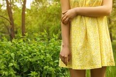 Mujer joven que rasgu?a la mano al aire libre Alergia estacional imágenes de archivo libres de regalías