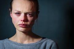 Mujer joven que sufre de la depresión/de la ansiedad/de la tristeza severas Imagenes de archivo