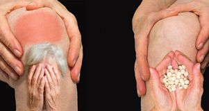 Mujer mayor que sostiene la rodilla con dolor imagenes de archivo