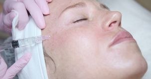 Mujer que consigue la inyección cosmética en cara almacen de metraje de vídeo