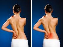 Mujer que da masajes a la parte posterior del dolor Fotos de archivo