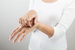 Mujer que rasguña su brazo Imagen de archivo