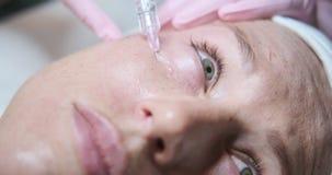 Mujer que recibe la inyección cosmética en cara almacen de metraje de vídeo