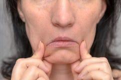 Mujer que tira abajo de los lados de su boca fotos de archivo