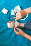 Mujer que venda su pierna herida Foto de archivo