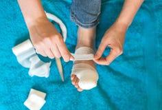 Mujer que venda su pierna herida Imagen de archivo libre de regalías