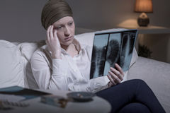 Mujer y radiografía preocupantes Imagenes de archivo
