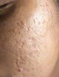 Mujeres con las cicatrices problemáticas de la piel y del acné Foto de archivo libre de regalías