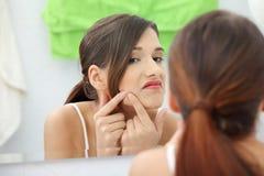 Mulher adolescente nova com pimple Fotos de Stock Royalty Free