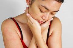 Mulher adulta com o prurido da alergia da pele Fotografia de Stock