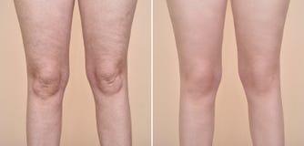 Mulher antes e depois das celulites imagens de stock royalty free