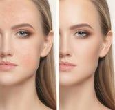 Mulher antes e depois do tratamento Imagem de Stock Royalty Free