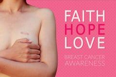 Mulher caucasiano com a cicatriz do câncer da mama no fundo cor-de-rosa Fotos de Stock Royalty Free