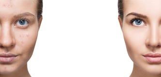Mulher com acne antes e depois do tratamento e da composição imagens de stock royalty free