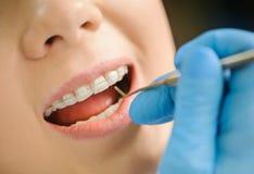 Mulher com as cintas cerâmicas nos dentes no escritório dental foto de stock