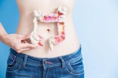 Mulher com câncer colorectal Imagens de Stock Royalty Free
