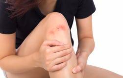 Mulher com dor do sentimento do joelho no fundo branco imagens de stock