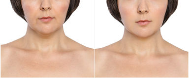 Mulher com e sem chamuscadelas do envelhecimento, queixo dobro, dobras nasolabial antes e depois do procedimento cosmético ou plá imagens de stock