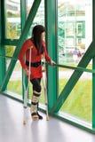 Mulher com pé quebrado Fotografia de Stock Royalty Free
