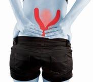 Mulher da dor nas costas foto de stock royalty free