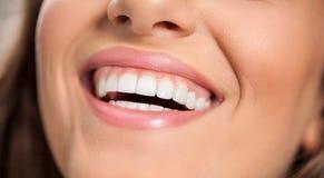 Mulher de sorriso com dentes saudáveis fotos de stock