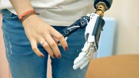 A mulher deficiente demonstra sua mão biônico 4K video estoque