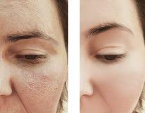 A mulher enruga a cara antes e depois da dermatologia dos procedimentos fotografia de stock royalty free