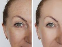 A mulher enruga a cara antes e depois da diferença cosmética dos procedimentos da remoção do tratamento fotografia de stock