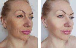 A mulher enruga a cara antes e depois dos tratamentos de levantamento da terapia imagem de stock