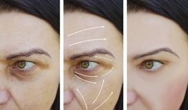 A mulher facial enruga enchimento inchado da diferença do efeito antes e depois dos procedimentos imagens de stock