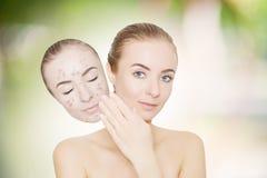A mulher leva embora a máscara com acne e espinhas, backgr exterior do verde Foto de Stock