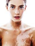 Mulher moderna real moreno bonita nova com fim do desease do vitiligo acima Imagens de Stock Royalty Free