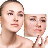 A mulher mostra a foto com pele má antes do tratamento imagem de stock royalty free