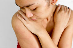 Mulher nova com o prurido da alergia da pele Imagens de Stock Royalty Free