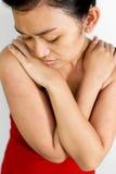 Mulher nova com o prurido da alergia da pele Fotos de Stock