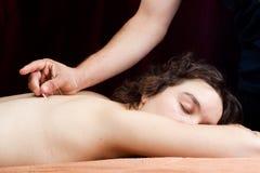 Mulher nova que recebe a acupunctura Imagem de Stock