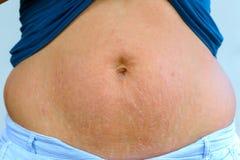 Mulher que indica marcas de estiramento após a gravidez foto de stock royalty free