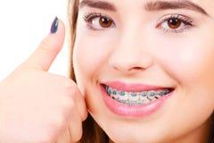 Mulher que mostra seus dentes com cintas Foto de Stock
