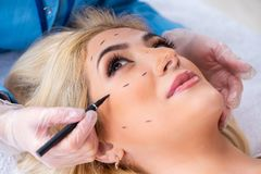 A mulher que prepara-se para a cirurgia plástica fotografia de stock