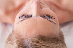Mulher que recebe uma terapia da agulha da acupuntura Fotografia de Stock