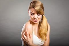 Mulher que risca seu braço sarnento com prurido da alergia Imagens de Stock Royalty Free