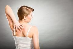 mulher que risca sua parte traseira sarnento com prurido da alergia Fotografia de Stock