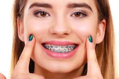 Mulher que sorri mostrando os dentes com cintas foto de stock
