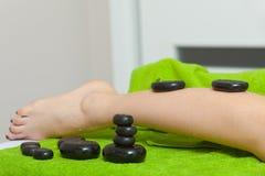 Mulher que tem a massagem dos pés com pedras quentes Fotografia de Stock Royalty Free