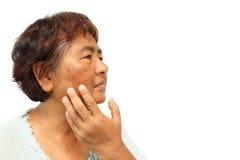 Mulher rural idosa com defeito, acne, toupeira e enrugamento em sua cara Foto de Stock