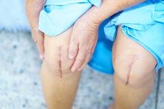 A mulher superior ou idosa asiática da senhora idosa paciente mostra-lhe cicatrizes cirurgia cirúrgica do joelho na cama no hospi imagem de stock