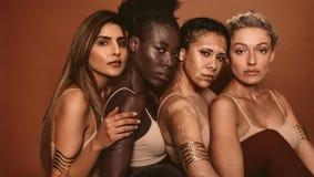 Mulheres bonitas com vários tipos da pele fotografia de stock royalty free