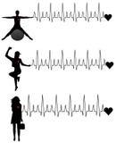 Mulheres e cardiogram ilustração stock